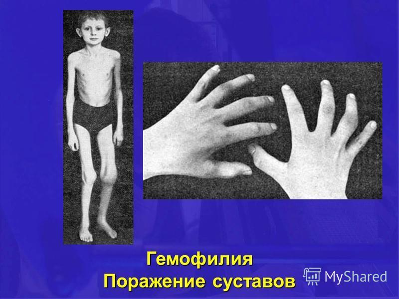 Гемофилия Поражение суставов