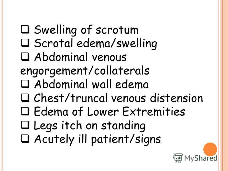 Swelling of scrotum Scrotal edema/swelling Abdominal venous engorgement/collaterals Abdominal wall edema Chest/truncal venous distension Edema of Lower Extremities Legs itch on standing Acutely ill patient/signs