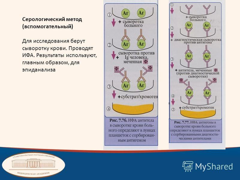Серологический метод (вспомогательный) Для исследования берут сыворотку крови. Проводят ИФА. Результаты используют, главным образом, для эпиданализа