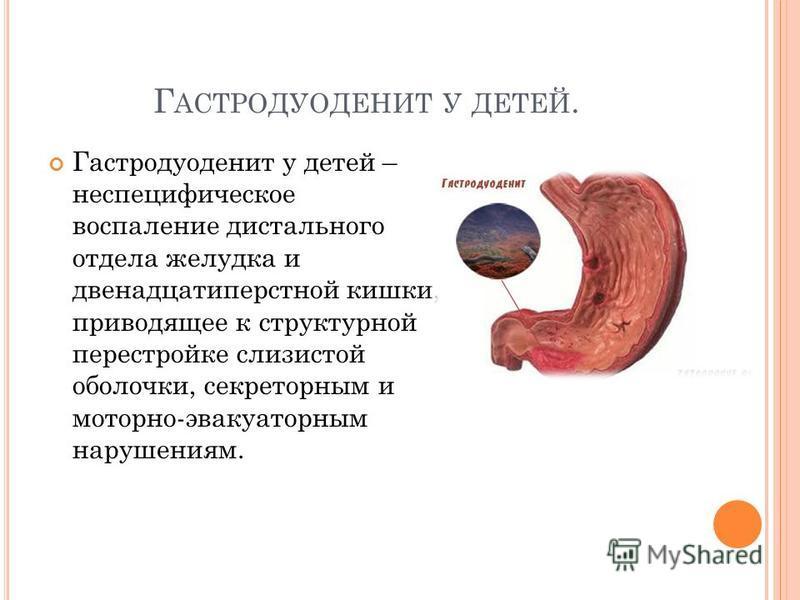 Г АСТРОДУОДЕНИТ У ДЕТЕЙ. Гастродуоденит у детей – неспецифическое воспаление дистального отдела желудка и двенадцатиперстной кишки, приводящее к структурной перестройке слизистой оболочки, секреторным и моторно-эвакуаторным нарушениям.