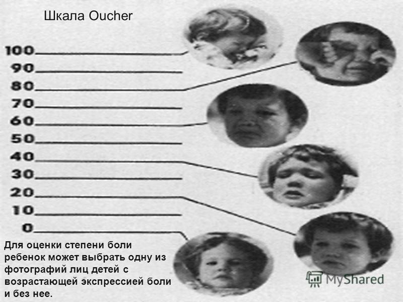 Шкала боли по Уонг «Лица»: Для объективной оценки боли в детской практике используют шкалу боли «Лица»: Для объективной оценки боли в детской практике используют шкалу боли «Лица»: Шкала Oucher Для оценки степени боли ребенок может выбрать одну из фо