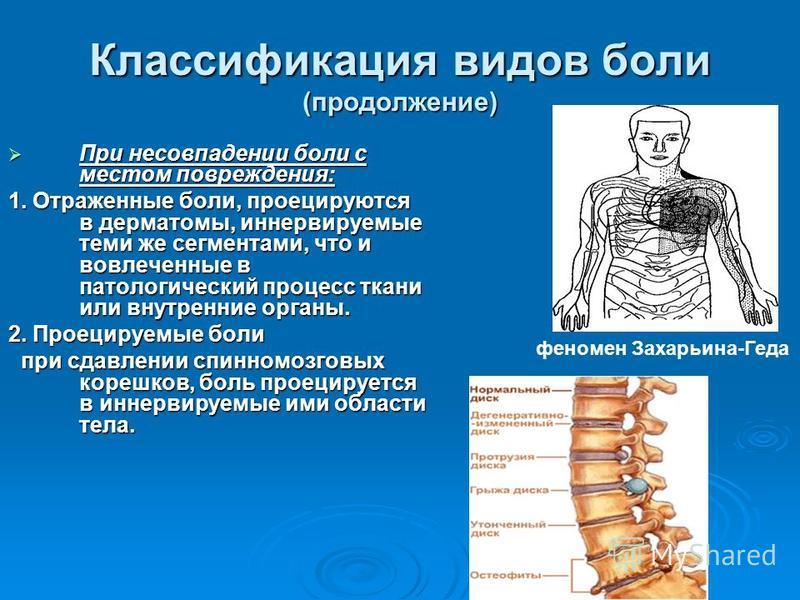 Классификация видов боли (продолжение) При несовпадении боли с местом повреждения: При несовпадении боли с местом повреждения: 1. Отраженные боли, проецируются в дерматомы, иннервируемые теми же сегментами, что и вовлеченные в патологический процесс