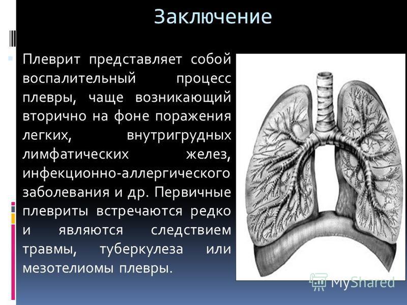 Заключение Плеврит представляет собой воспалительный процесс плевры, чаще возникающий вторично на фоне поражения легких, внутригрудных лимфатических желез, инфекционно-аллергического заболевания и др. Первичные плевриты встречаются редко и являются с