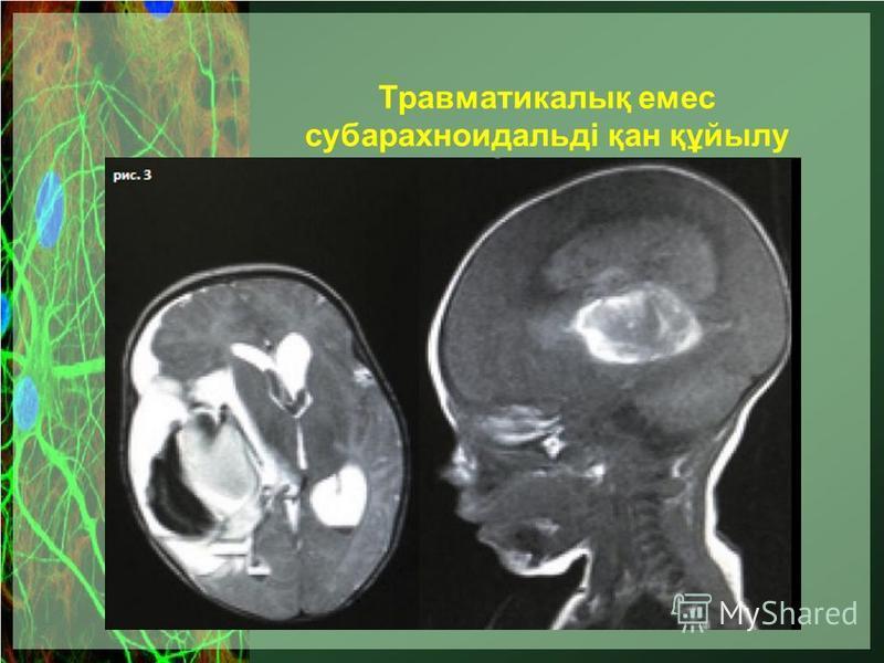 Травматикалық емс субарахноидальді қан құйылу
