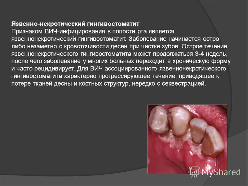 Язвенно-некротический гингивостоматит Признаком ВИЧ-инфицирования в полости рта является язвенно некротический гингивостоматит. Заболевание начинается остро либо незаметно с кровоточивости десен при чистке зубов. Острое течение язвенно некротического