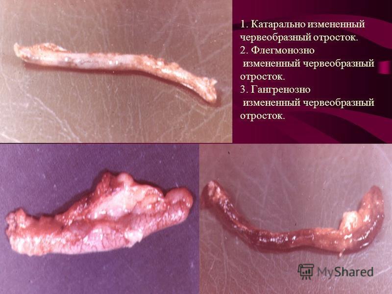 1. Катарально измененный червеобразный отросток. 2. Флегмонозно измененный червеобразный отросток. 3. Гангренозно измененный червеобразный отросток.