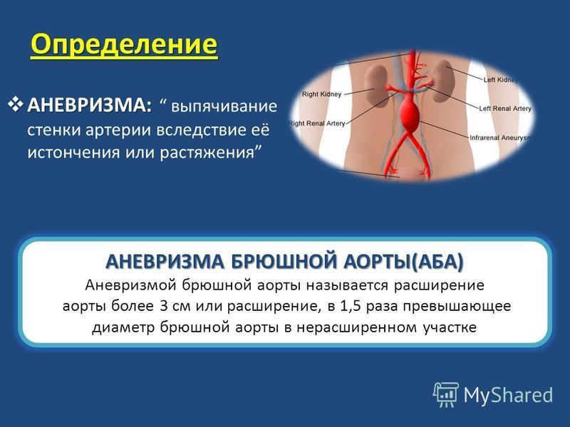 Определение АНЕВРИЗМА: АНЕВРИЗМА: выпячивание стенки артерии вследствие её истончения или растяжения АНЕВРИЗМА БРЮШНОЙ АОРТЫ(АБА) Аневризмой брюшной аорты называется расширение аорты более 3 см или расширение, в 1,5 раза превышающее диаметр брюшной а