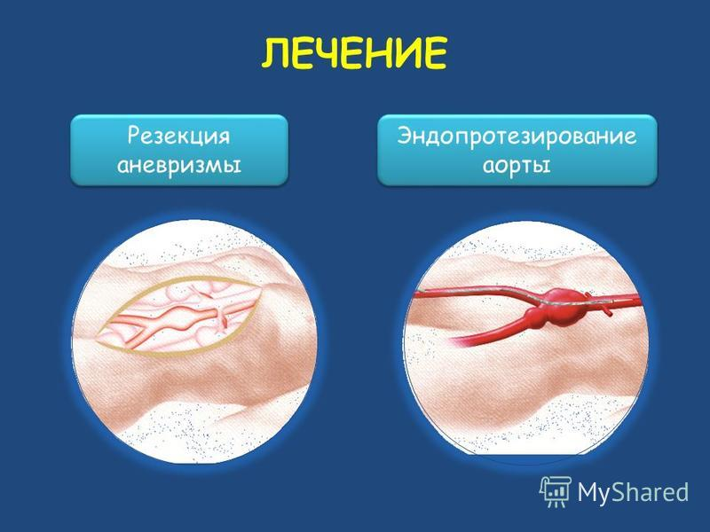 ЛЕЧЕНИЕ Резекция аневризмы Эндопротезирование аорты