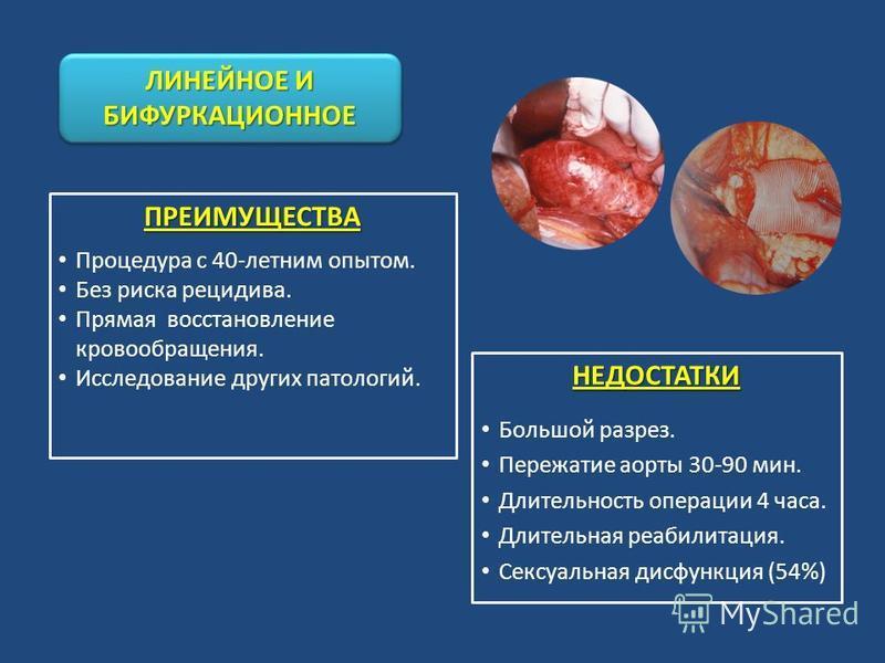 ПРЕИМУЩЕСТВА Процедура с 40-летним опытом. Без риска рецидива. Прямая восстановление кровообращения. Исследование других патологий. ЛИНЕЙНОЕ И БИФУРКАЦИОННОЕ НЕДОСТАТКИ Большой разрез. Пережатие аорты 30-90 мин. Длительность операции 4 часа. Длительн