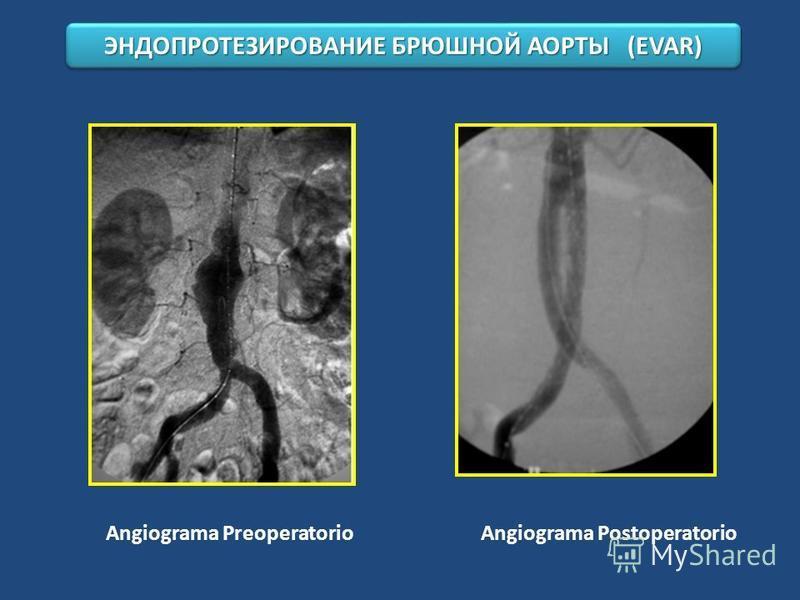 Angiograma Preoperatorio Angiograma Postoperatorio ЭНДОПРОТЕЗИРОВАНИЕ БРЮШНОЙ АОРТЫ (EVAR)