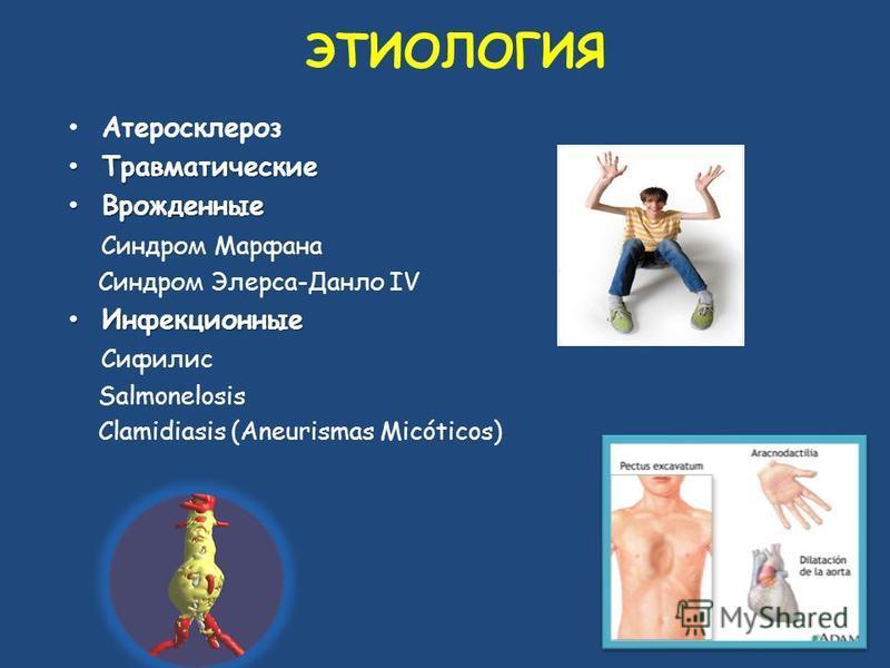 Атеросклероз Травматические Травматические Врожденные Врожденные Синдром Марфана Синдром Элерса-Данло IV Инфекционные Инфекционные Сифилис Salmonelosis Clamidiasis (Aneurismas Micóticos) ЭТИОЛОГИЯ
