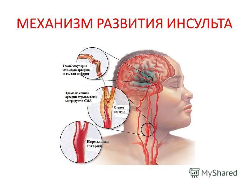 МЕХАНИЗМ РАЗВИТИЯ ИНСУЛЬТА Эмболический Гемодинамический Тромботический