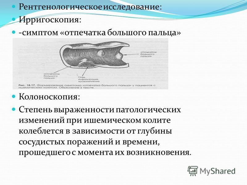 Рентгенологическое исследование: Ирригоскопия: -симптом «отпечатка большого пальца» Колоноскопия: Степень выраженности патологических изменений при ишемическом колите колеблется в зависимости от глубины сосудистых поражений и времени, прошедшего с мо