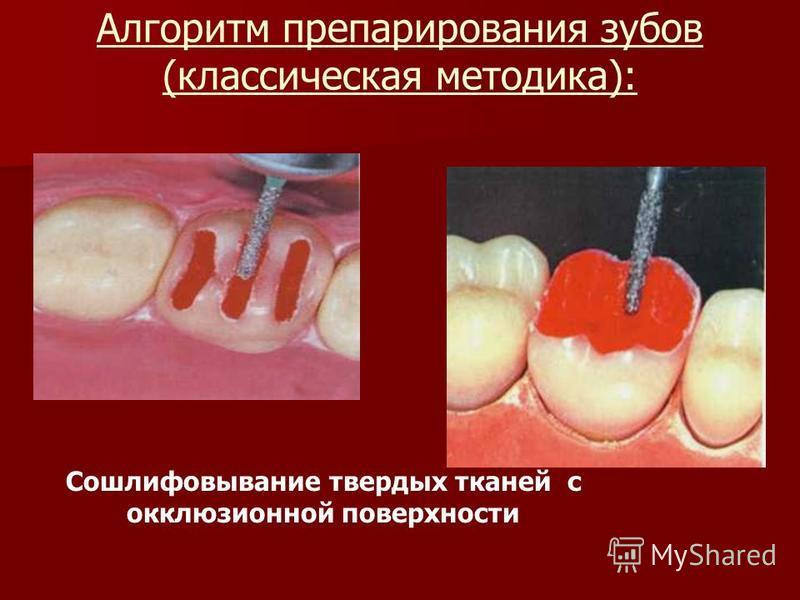 Алгоритм препарирования зубов (классическая методика): Сошлифовывание твердых тканей с окклюзионной поверхности