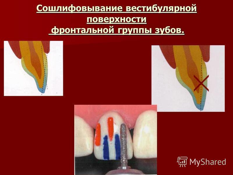 Сошлифовывание вестибулярной поверхности фронтальной группы зубов.