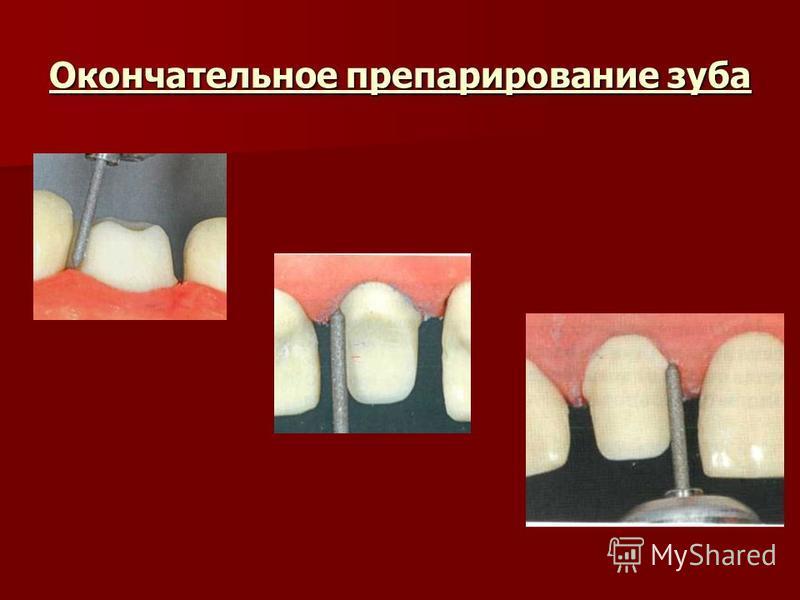 Окончательное препарирование зуба
