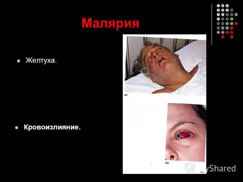 Малярия Желтуха. Кровоизлияние.