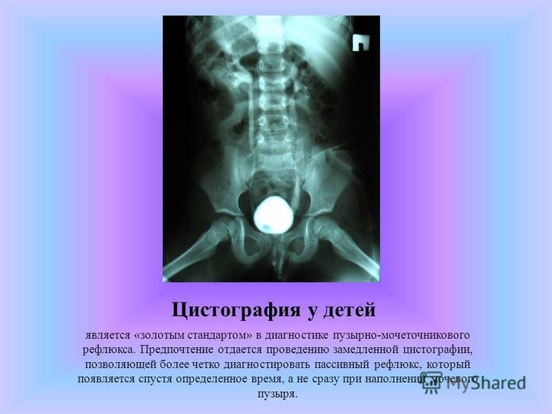 Цистография у детей является «золотым стандартом» в диагностике пузырно-мочеточникового рефлюкса. Предпочтение отдается проведению замедленной цистографии, позволяющей более четко диагностировать пассивный рефлюкс, который появляется спустя определен