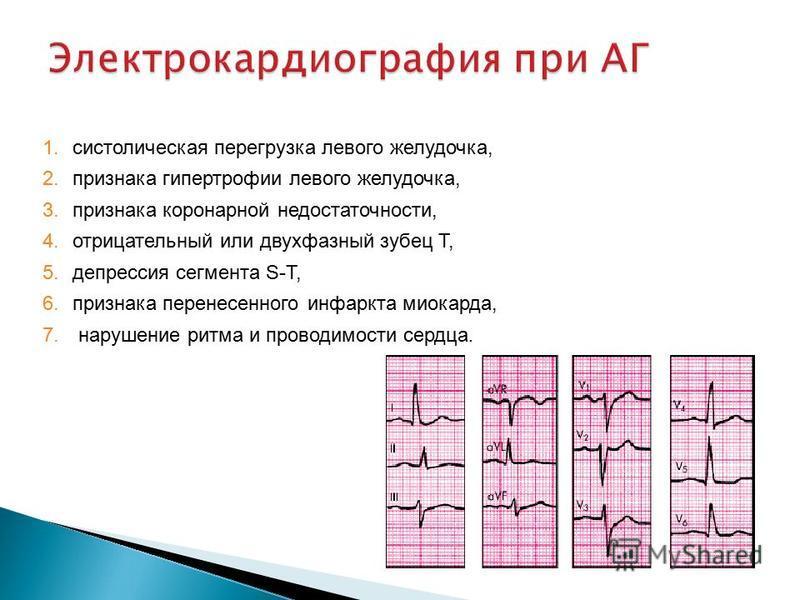 1. систолическая перегрузка левого желудочка, 2. признака гипертрофии левого желудочка, 3. признака коронарной недостаточности, 4. отрицательный или двухфазный зубец T, 5. депрессия сегмента S-T, 6. признака перенесенного инфаркта миокарда, 7. наруше