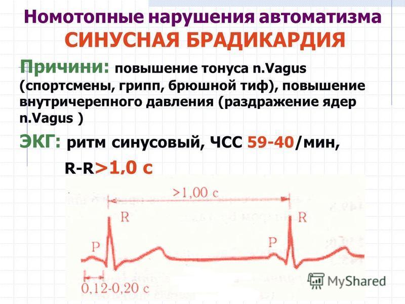Номотопные нарушения автоматизма СИНУСНАЯ БРАДИКАРДИЯ Причини: повышение тонуса n.Vagus (спортсмены, грипп, брюшной тиф), повышение внутричерепного давления (раздражение ядер n.Vagus ) ЭКГ: ритм синусовый, ЧСС 59-40/мин, R-R >1,0 с