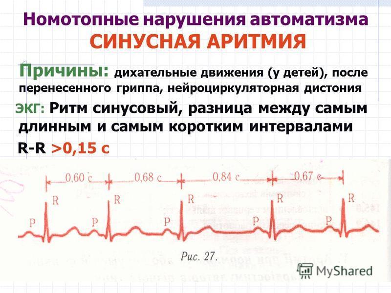 Номотопные нарушения автоматизма СИНУСНАЯ АРИТМИЯ Причины: дыхательные движения (у детей), после перенесенного гриппа, нейроциркуляторная дистония ЭКГ: Ритм синусовый, разница между самым длинным и самым коротким интервалами R-R >0,15 с