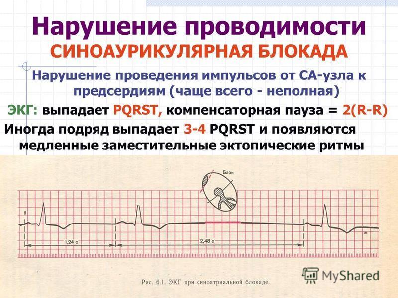 Нарушение проводимости СИНОАУРИКУЛЯРНАЯ БЛОКАДА Нарушение проведения импульсов от СА-узла к предсердиям (чаще всего - неполная) ЭКГ: выпадает PQRST, компенсаторная пауза = 2(R-R) Иногда подряд выпадает 3-4 PQRST и появляются медленные заместительные
