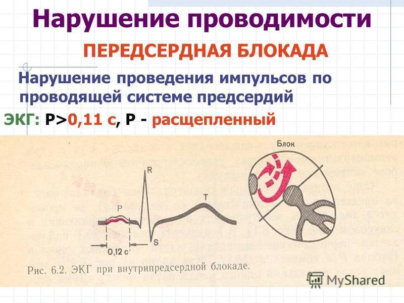 Нарушение проводимости ПЕРЕДСЕРДНАЯ БЛОКАДА Нарушение проведения импульсов по проводящей системе предсердий ЭКГ: Р>0,11 с, Р - расщепленный
