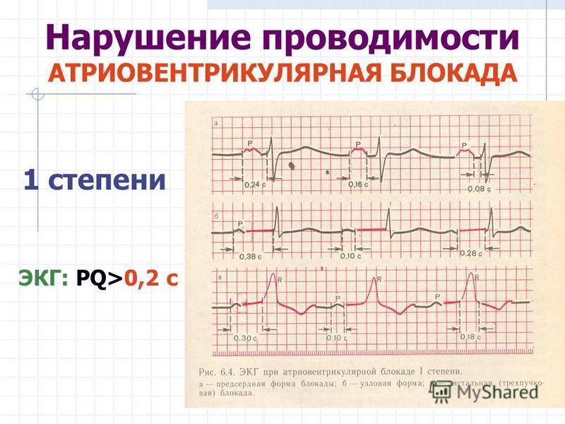 1 степени ЭКГ: PQ>0,2 с Нарушение проводимости АТРИОВЕНТРИКУЛЯРНАЯ БЛОКАДА