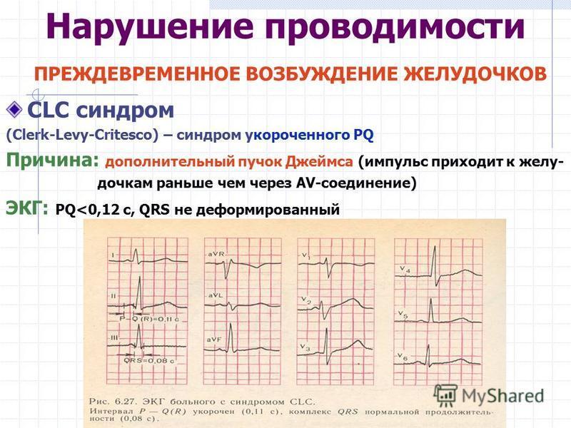 Нарушение проводимости ПРЕЖДЕВРЕМЕННОЕ ВОЗБУЖДЕНИЕ ЖЕЛУДОЧКОВ CLC синдром (Clerk-Levy-Critesco) – синдром укороченного PQ Причина: дополнительный пучок Джеймса (импульс приходит к желудочка м раньше чем через AV-соединение) ЭКГ: PQ<0,12 с, QRS не деф