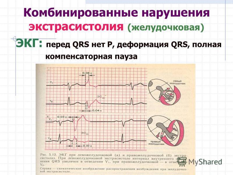 Комбинированные нарушения экстрасистолия (желудочковая) ЭКГ: перед QRS нет Р, деформация QRS, полная компенсаторная пауза