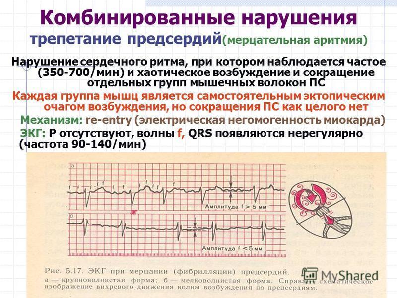 Комбинированные нарушения трепетание предсердий (мерцательная аритмия) Нарушение сердечного ритма, при котором наблюдается частое (350-700/мин) и хаотическое возбуждение и сокращение отдельных групп мышечных волокон ПС Каждая группа мышц является сам