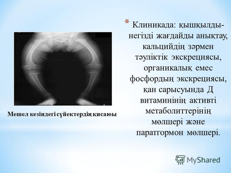 * Клиникада: қышқылды- негізді жағдайды анықтау, кальцийдің зәрмен тәуліктік экскрециясы, органикалық емс фосфордың экскрециясы, қан сарысуында Д витаминінің активті метаболиттерінің мөлшері және паратгормон мөлшері. Мешел кезіндегі сүйектердің қисаю