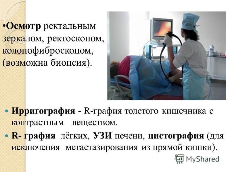 Ирригография - R-графия толстого кишечника с контрастным веществом. R- графия лёгких, УЗИ печени, цистография (для исключения метастазирования из прямой кишки). Осмотр ректальным зеркалом, ректоскопом, колонофиброскопом, (возможна биопсия).