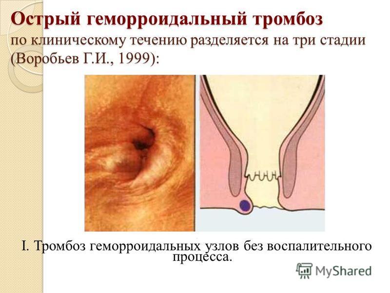 Острый геморроидальный тромбоз по клиническому течению разделяется на три стадии (Воробьев Г.И., 1999):. I. Тромбоз геморроидальных узлов без воспалительного процесса.