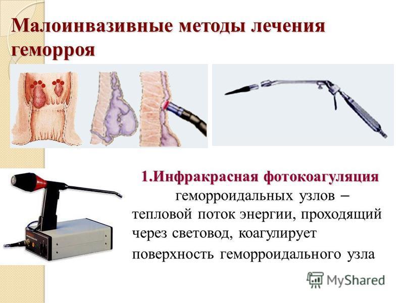 Малоинвазивные методы лечения геморроя 1. Инфракрасная фотокоагуляция 1. Инфракрасная фотокоагуляция геморроидальных узлов – тепловой поток энергии, проходящий через световод, коагулирует поверхность геморроидального узла