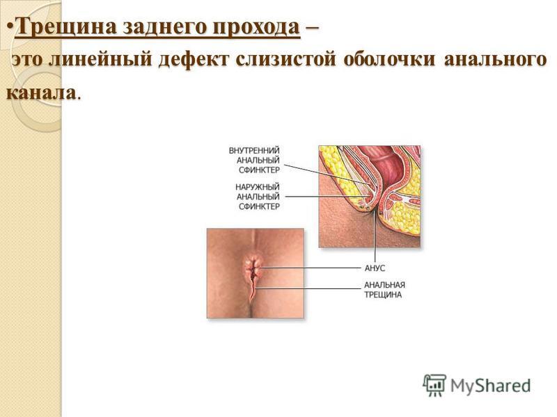 Трещины анальные прохода