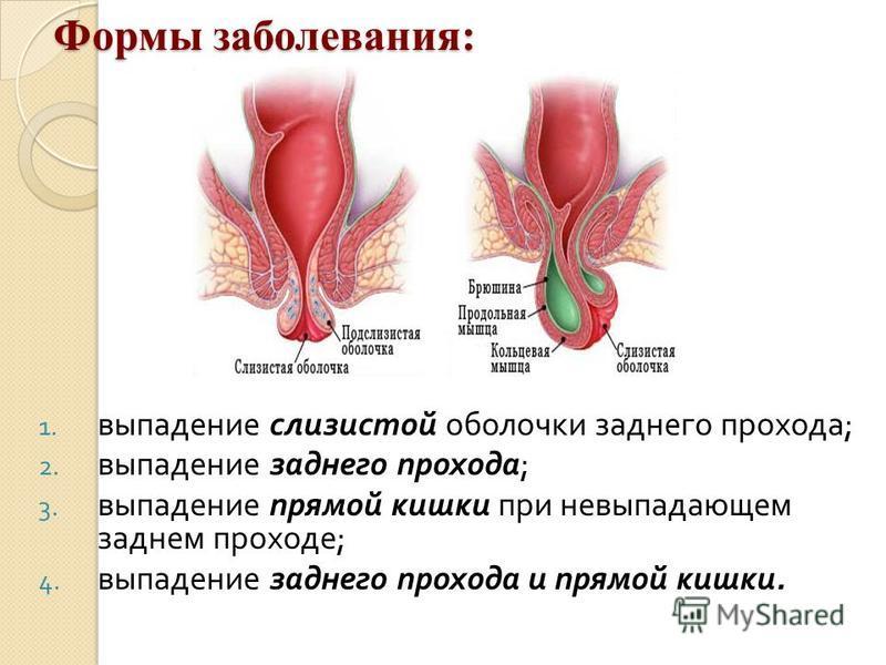 Формы заболевания: 1. выпадение слизистой оболочки заднего прохода ; 2. выпадение заднего прохода ; 3. выпадение прямой кишки при невыпадающем заднем проходе ; 4. выпадение заднего прохода и прямой кишки.