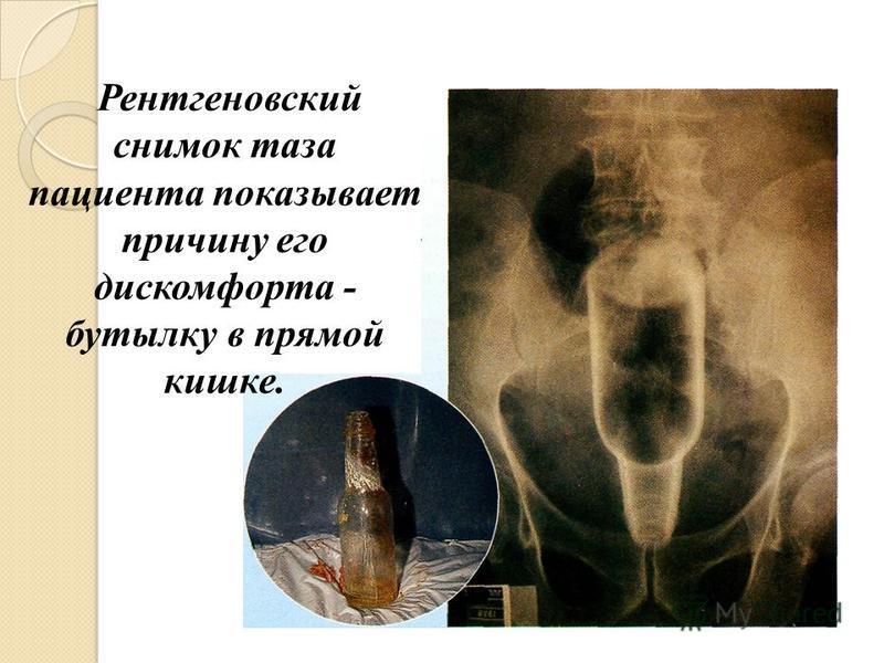 Рентгеновский снимок таза пациента показывает причину его дискомфорта - бутылку в прямой кишке.