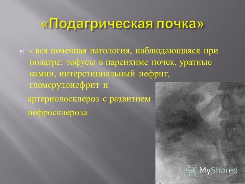 - вся почечная патология, наблюдающаяся при подагре : тофусы в паренхиме почек, уратные камни, интерстициальный нефрит, гломерулонефрит и артериолосклероз с развитием нефросклероза