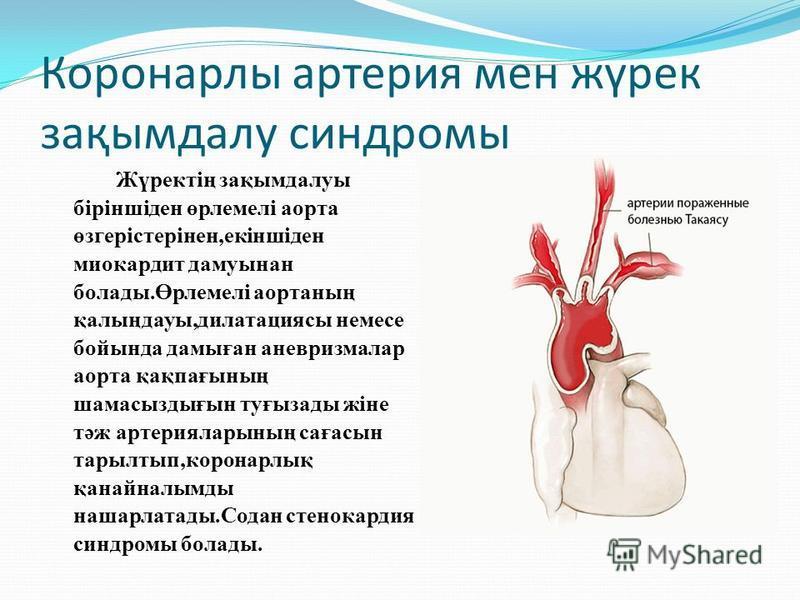 Коронарлы артерия мен жүрек зақымдалу синдромы Жүректің зақымдалуы біріншіден өрлемелі аорта өзгерістерінен,екіншіден миокардит дамуынан болады.Өрлемелі аортанның қалыңдауы,дилатациясы немсе бойында дамыған аневризмалар аорта қақпағсының шамасыздығын