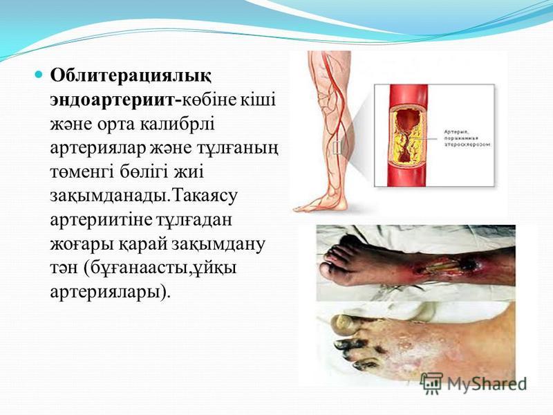 Облитерациялық эндоартериит-көбіне кіші және орта калибрлі артериялар және тұлғанның төменгі бөлігі жиі зақымданады.Такаясу артериитіне тұлғадан жеғары қарай зақымдану тән (бұғанаасты,ұйқы артерия лары).