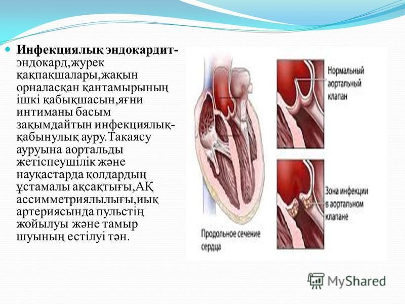 Инфекциялық эндокардит- эндокард,журек қақпақшалары,жақын орналасқан қантаймырсының ішкі қабықшасын,яғни интиманны босым зақымдайтын инфекциялық- қабынулық ауру.Такаясу ауруына аортальды жетіспеушілік және науқастарта қолдардың ұстамалы ақсақтығы,АҚ