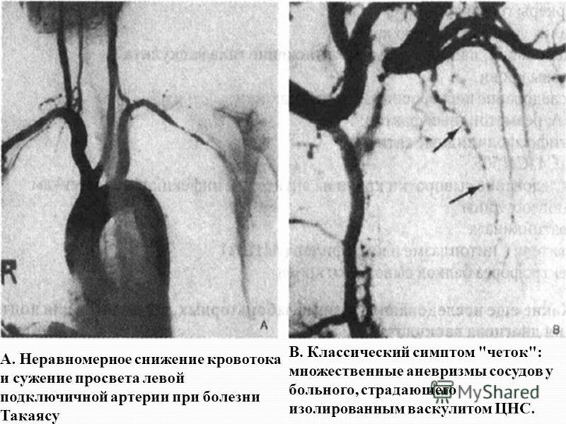 А. Неравномерное снижение кровотока и сужение просвета левой подключичной артерии при болезни Такаясу В. Классический симптом четок: множественные аневризмы сосудов у больного, страдающего изолированным васкулитом ЦНС.