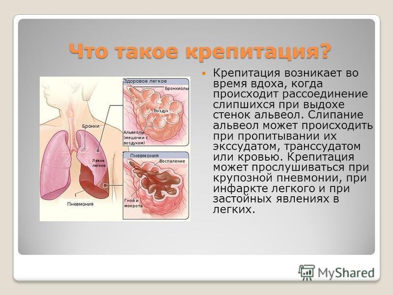 Что такое крепитация? Крепитация возникает во время вдоха, когда происходит рассоединение слипшихся при выдохе стенок альвеол. Слипание альвеол может происходить при пропитывании их экссудатом, транссудатом или кровью. Крепитация может прослушиваться