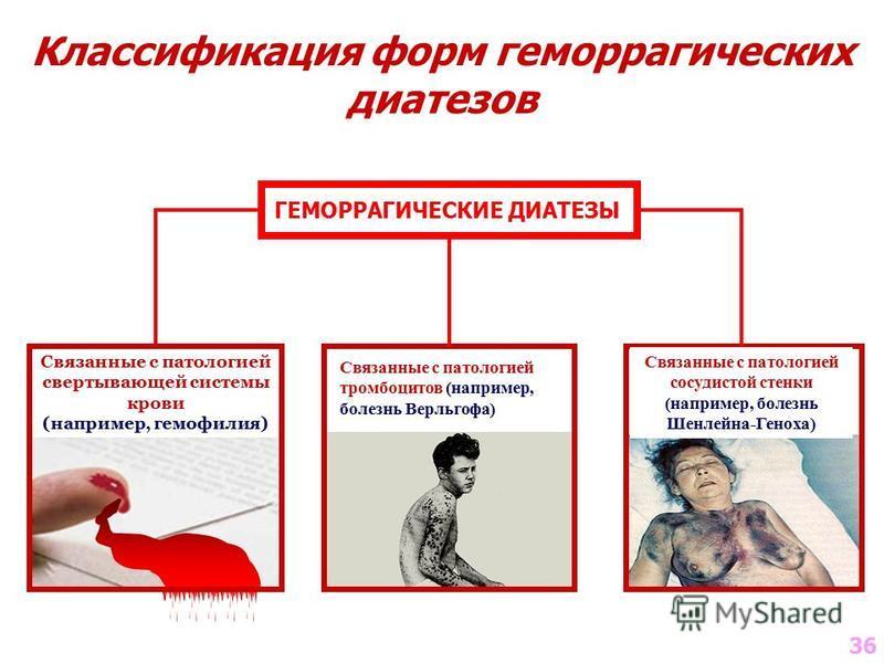 Связанные с патологией свертывающей системы крови (например, гемофилия) Связанные с патологией тромбоцитов (например, болезнь Верльгофа) Связанные с патологией сосудистой стенки (например, болезнь Шенлейна-Геноха) Классификация форм геморрагических д