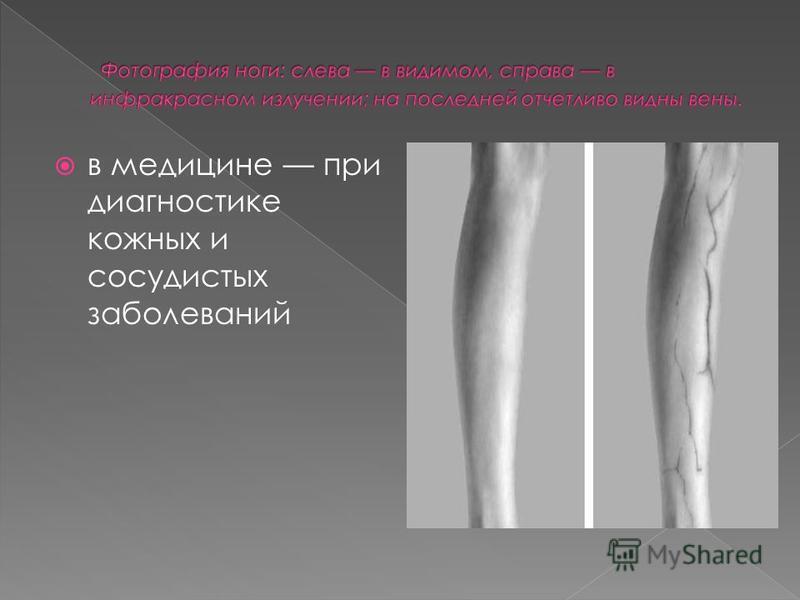 в медицине при диагностике кожных и сосудистых заболеваний