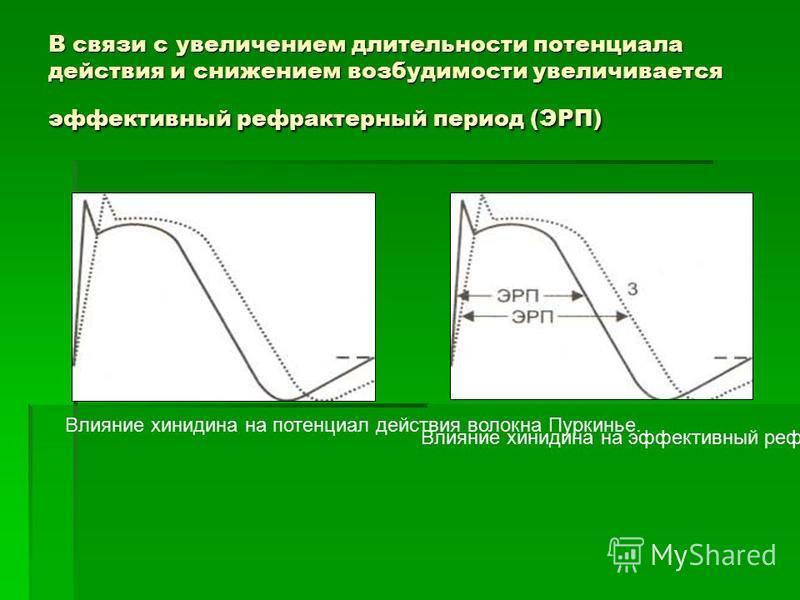 Влияние хинидина на потенциал действия волокна Пуркинье. Влияние хинидина на эффективный рефрактерный период волокна Пуркинье. В связи с увеличением длительности потенциала действия и снижением возбудимости увеличивается эффективный рефрактерный пери