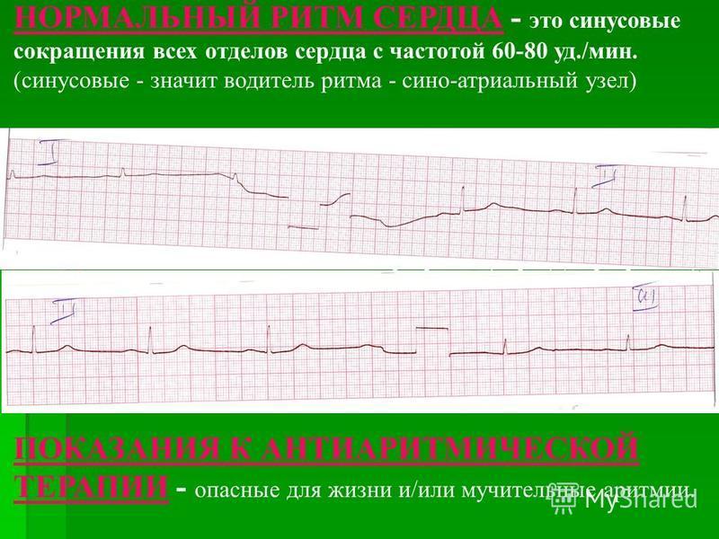 НОРМАЛЬНЫЙ РИТМ СЕРДЦА - это синусовые сокращения всех отделов сердца с частотой 60-80 уд./мин. (синусовые - значит водитель ритма - сено-атриальный узел) НАРУШЕНИЯ РИТМА СЕРДЦА (АРИТМИИ) - это любые отклонения от нормального ритма сокращений всего с