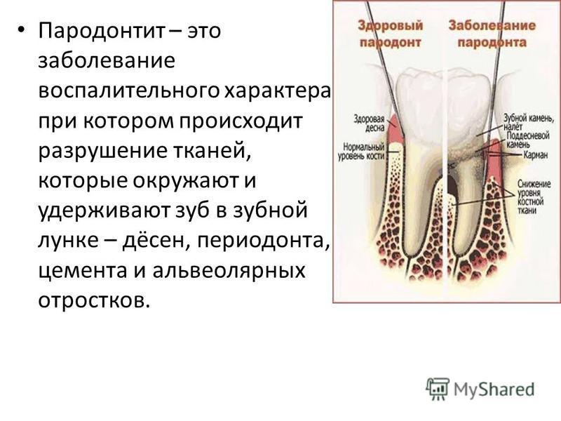 Пародонтит – это заболевание воспалительного характера, при котором происходит разрушение тканей, которые окружают и удерживают зуб в зубной лунке – дёсен, периодонта, цемента и альвеолярных отростков.