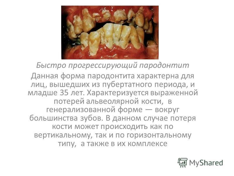Быстро прогрессирующий пародонтит Данная форма пародонтита характерна для лиц, вышедших из пубертатного периода, и младше 35 лет. Характеризуется выраженной потерей альвеолярной кости, в генерализованной форме вокруг большинства зубов. В данном случа